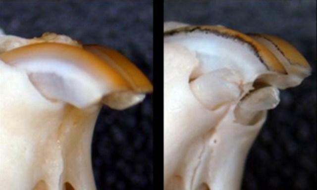 Naukowcy znaleźli sposób na regenerację utraconych zębów