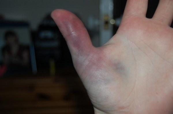 Ушиб пальца на руке фото – Ушиб пальца на руке, ноге ...