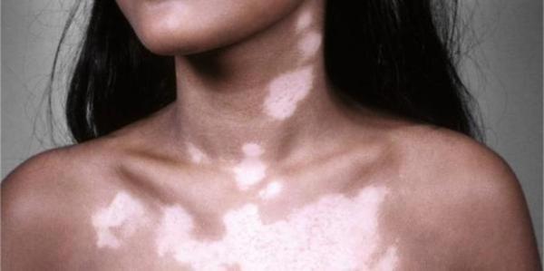 Шелушащиеся пятна на лице не чешутся – Сухие пятна на коже ...