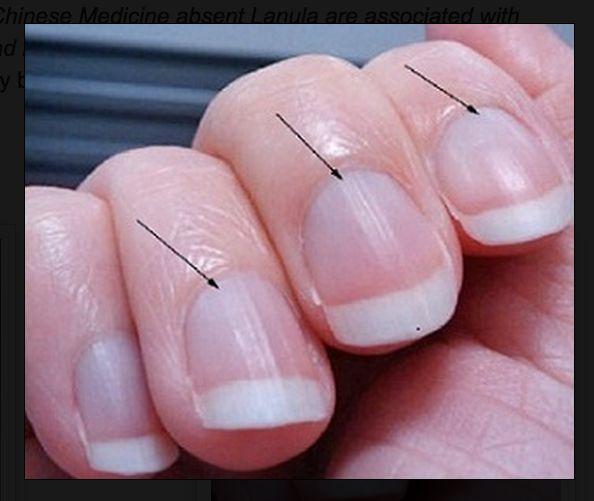 ВНИМАНИЕ: Погледнете ноктите на ръката си и вижте от какви заболявания сте застрашени!