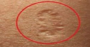 Питали ли сте се някога какво означава малкият белег в горната част на лявата ръка