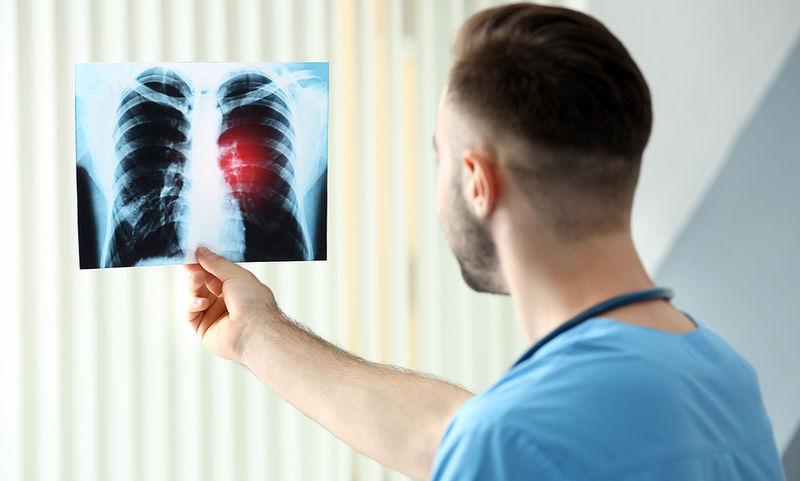 Ποια είναι η βιταμίνη που καταστρέφει τους πνεύμονές μας