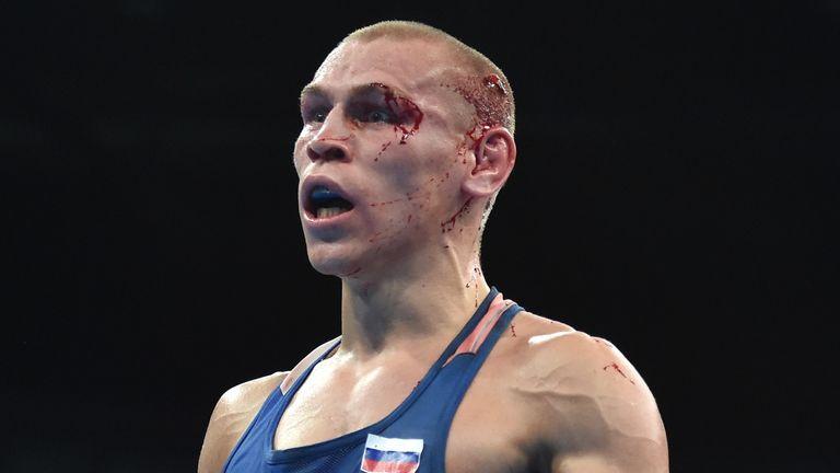 Blood-covered Vladimir Nikitin reacts to winning against Michael Conlan
