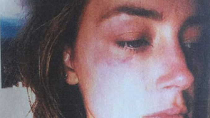 Image of injuries Amber Heard submitted to court as she secures restraining order against Johnny Depp