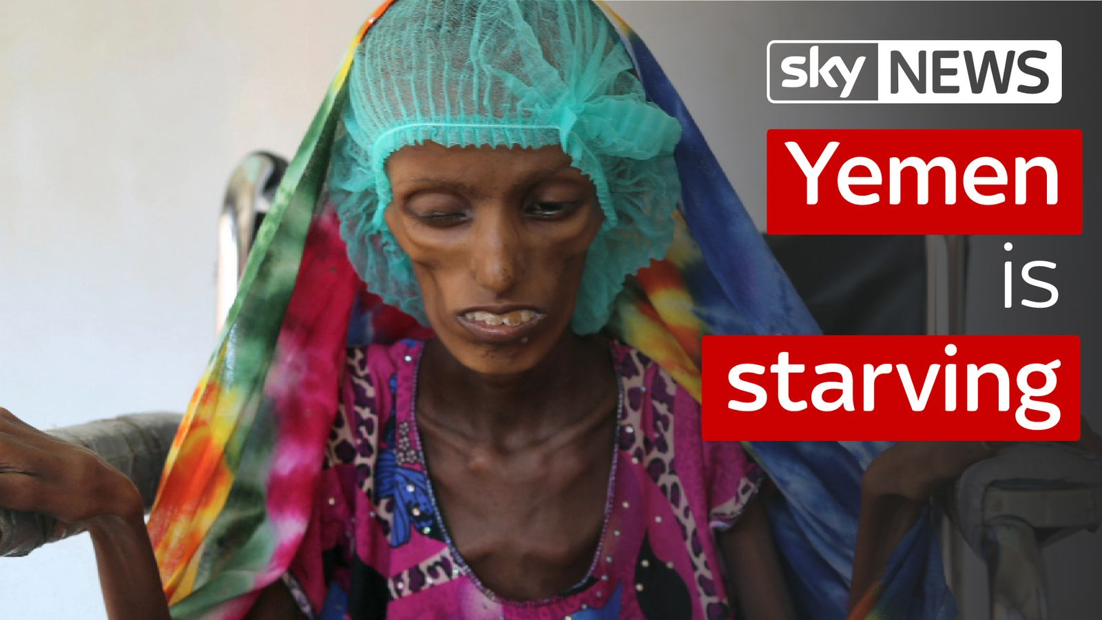People In Yemen Are Starving