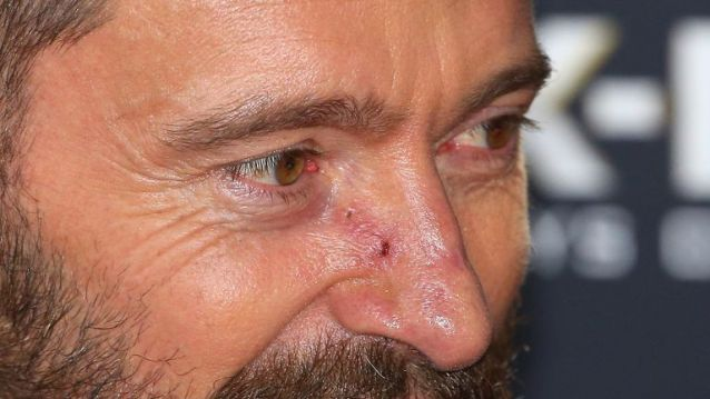 Actor Hugh Jackman has sixth skin cancer removed from his nose | Ents & Arts News | Sky News