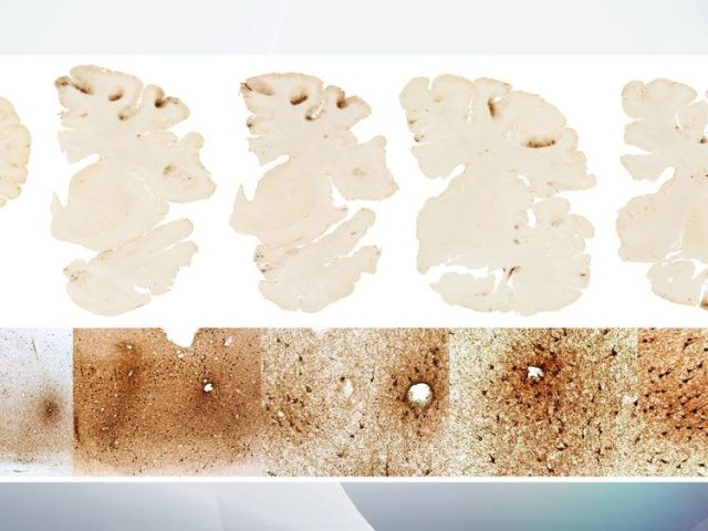 Test results showed Hernandez's brain showed signs of stage 3 of CTE