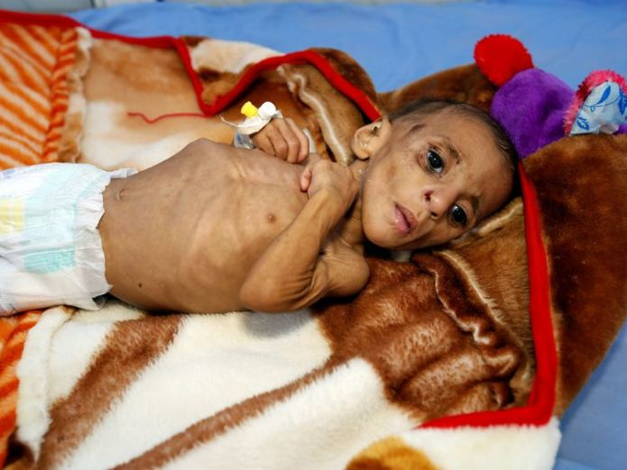 One-year-old Fatima Abdullah Hassan is one of thousands at a malnutrition treatment center in the port city of Hodeida, Yemen Saudi-led coalition forces begin assault on Yemen aid port Saudi-led coalition forces begin assault on Yemen aid port skynews yemen hodeida world health organisation 4188818