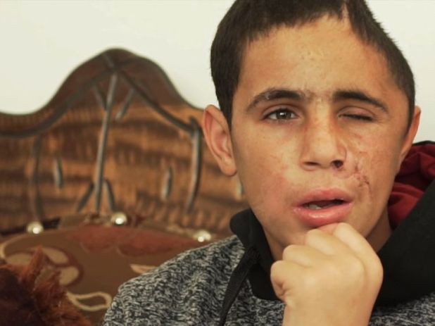Mohammed, had been seriously injured when a rubber bullet was fired at his face at close range leaving him in a medically induced coma.