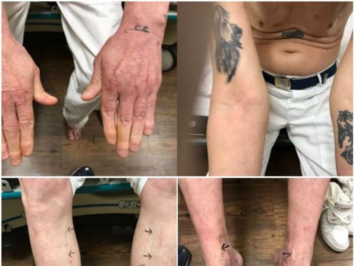 Doyle Lee Hamm. Pic: Court Documents Death row inmate in great pain after gory and torturous botched execution, says lawyer Death row inmate in great pain after gory and torturous botched execution, says lawyer doyle lee hamm alabama execution 4241489
