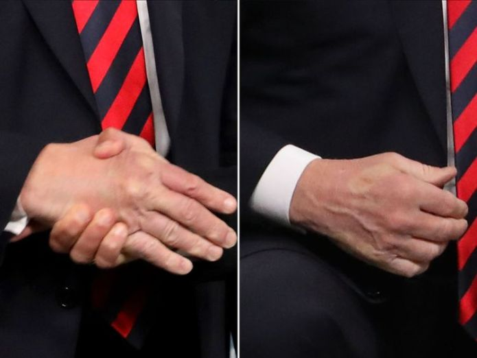 Macron left his mark on Trump's hand after a firm handshake Photo shared by Angela Merkel hints at tension at G7 Photo shared by Angela Merkel hints at tension at G7 skynews macron trump handshake 4331888