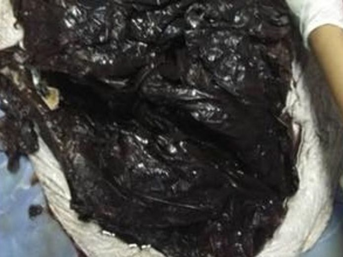 The whale swallowed more than 80 plastic bags Whale dies after swallowing 80 plastic bags off southern Thailand Whale dies after swallowing 80 plastic bags off southern Thailand skynews whale plastic bag 4326416