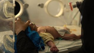Countless children are dying from lack of food and healthcare in Yemen