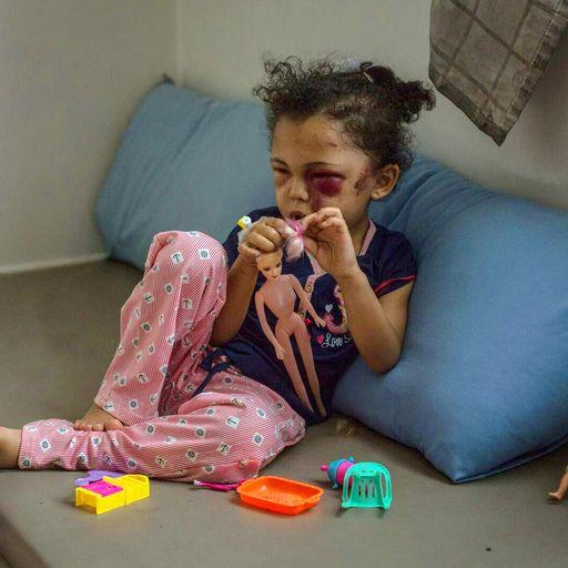 Yemen: Faces of the world's forgotten war