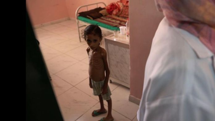 Anissa Abdulmoniem has not eaten properly for two years