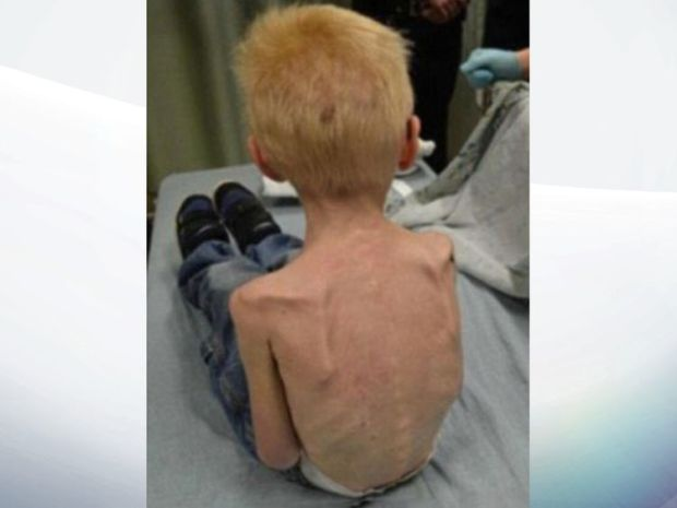Doctors said Jordan had nearly starved to death. Pic: Harris County Precinct 4
