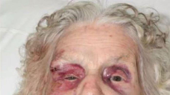 Zofija Kaczan was badly injured, including a broken neck and cheekbone, when she was ambushed. Picture: Derbyshire Police