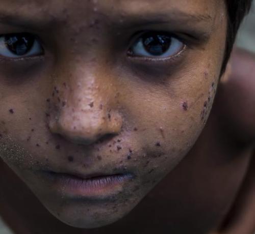 Niño rohingya