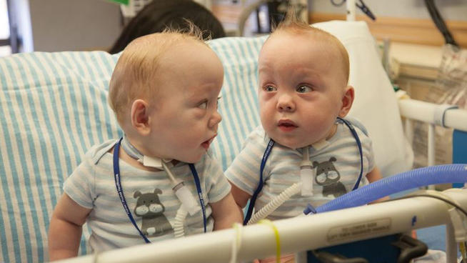 Previously Conjoined Ezell Twins to go Home