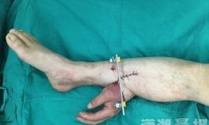 Surgeons In China Successfully Graft A Mans Hand To His Leg To Keep It Alive After It was Accidentally Amputated