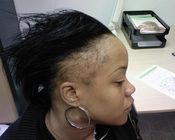 Recedeing-Hairline
