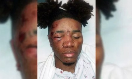 Black Teens Beaten For Talking To White Girl At Christmas Party
