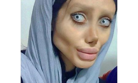 "Angelina Jolie 19-Year Old Fan Allegedly Gets 50 Surgeries To Look Like Her ""Big Mistake"""