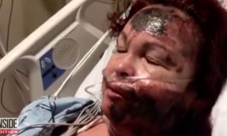 White Woman Pours Acid On Her Own Face, Destroying Her Skin & Blames A Black Woman Who Does Not Exist