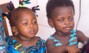 Ghanaian Toddlers With Beautiful Blue Eyes Turn To Modeling To Raise Funds For Ear Surgery