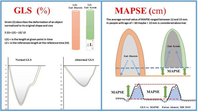 Cardiac Longitudinal Function: GLS vs. MAPSE