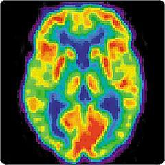 PET scan of human brain
