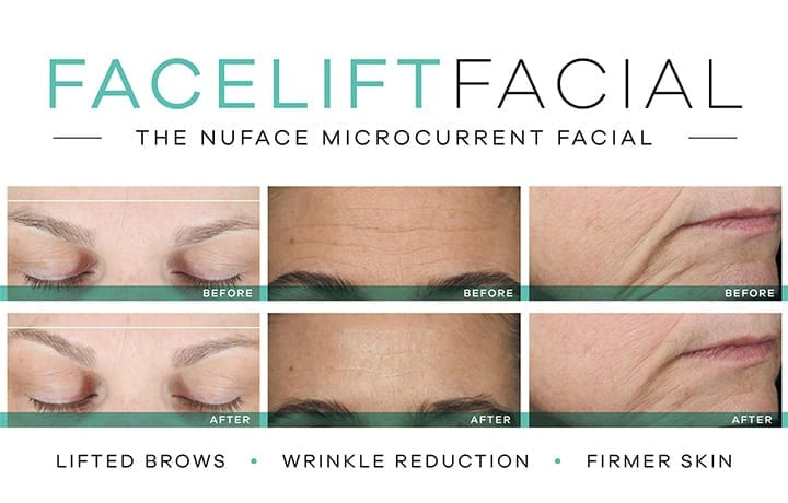 Nuface Facelift - Earthsavers Spa + Store