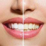 [TASTED] How To Whiten Teeth With Strawberries At Home in 5 minutes