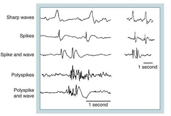 EEG spikes