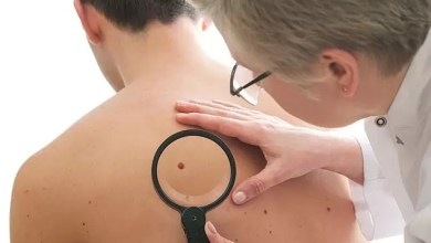 Photo of Men with High Testosterone Levels More Likely To Develop Skin Cancer – STUDY