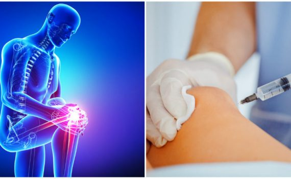 regenerative stem cell therapy or surgery for knee pain Eastside Medical Group Cleveland