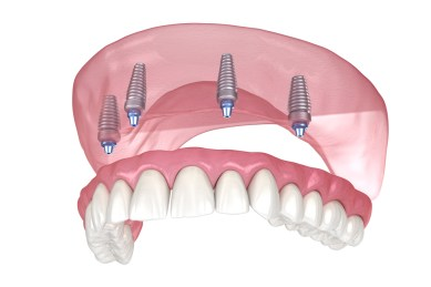 All on 4 implant