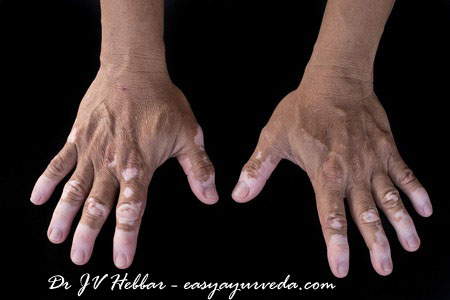 Vitiligo: Ayurvedic Treatment, Medicines, Herbs, Remedies