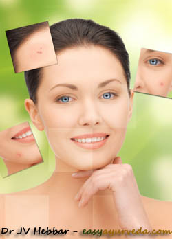 Ayurvedic Treatment For Pimple
