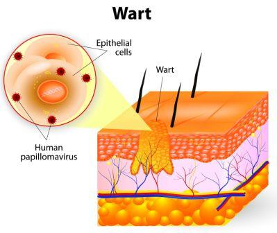 Warts: Ayurvedic Treatment, Remedies, Prevention Tips | Easy