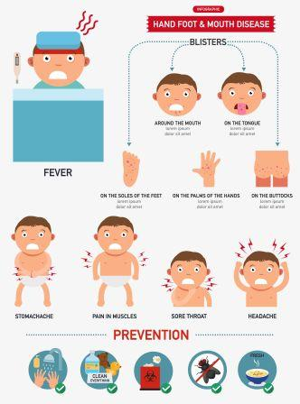 Hand foot and mouth disease in infants