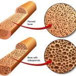 Low Bone Density Causes, Ayurvedic Treatment, Diet