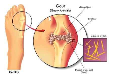 Gout: Causes, Symptoms, Treatment, home remedies