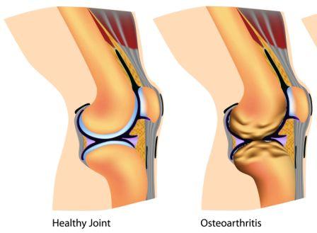 OsteoArthritis: Prevention, Home Remedies, Ayurvedic Treatment