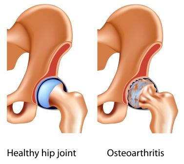 osteo arthritis of hip