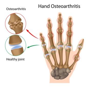 osteoarthritis - hand