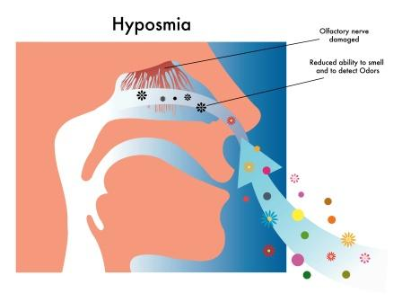 Anosmia: Ayurvedic Treatment And Home Remedies | Easy Ayurveda