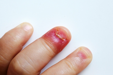 Improper Trimming Of The Cuticles Or Nail Bed Edges Contact Chemicals Repeated Exposure To Cold Aqueous Matters
