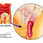 Inguinal Hernia – Causes, Symptoms, Differential diagnosis, Treatment
