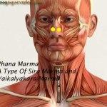 Phana Marma: Components, Location, Effect Of Injury